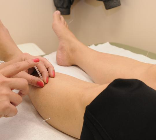 25% Off First Acupuncture Appointment