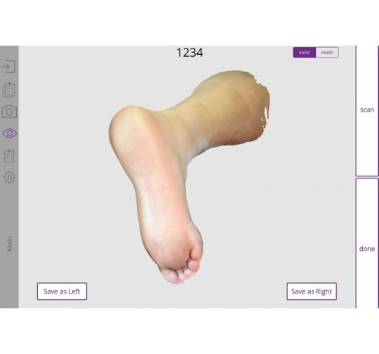 Orthotics Using 3D Foot Scanning